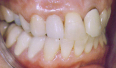 After: Crowns on Fractured Teeth