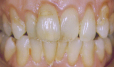 After: Orthodontics Without Orthodontics
