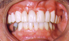 After: Dr. Moskowitz builds smiles