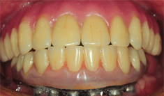 After: Implant Supported Denture